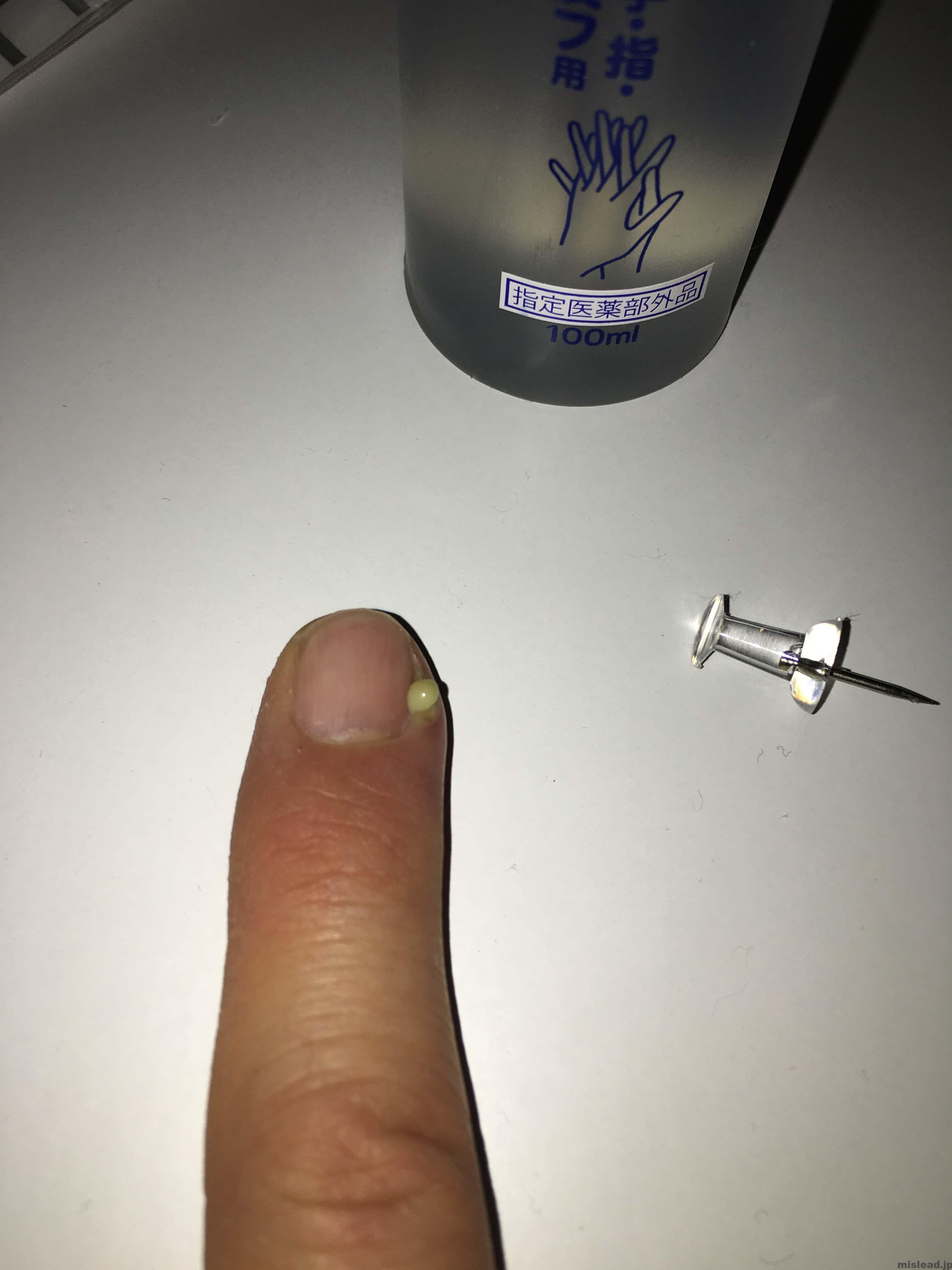 ひょう疽 画鋲で膿を出す