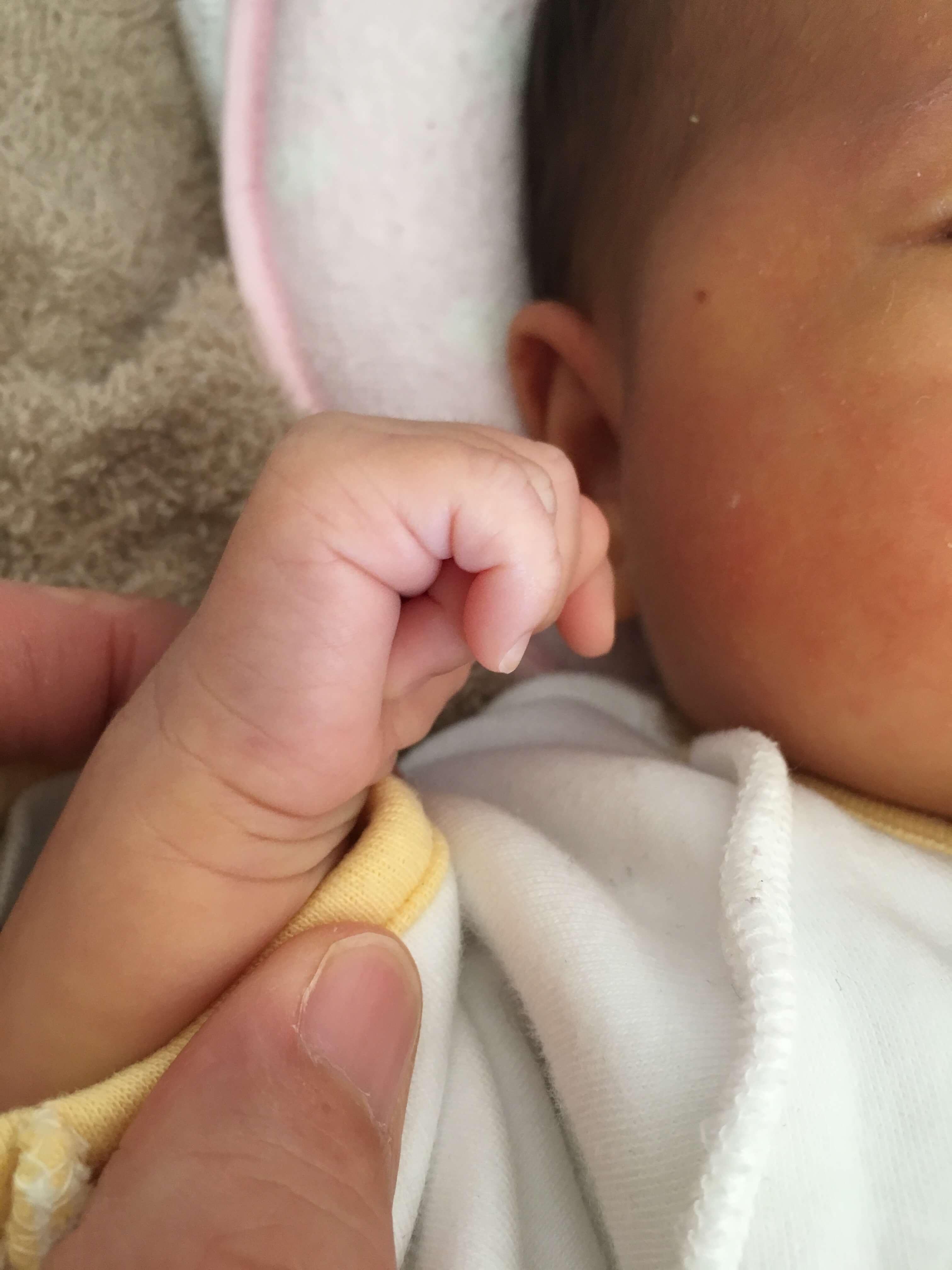 新生児落屑が治った 手の裏