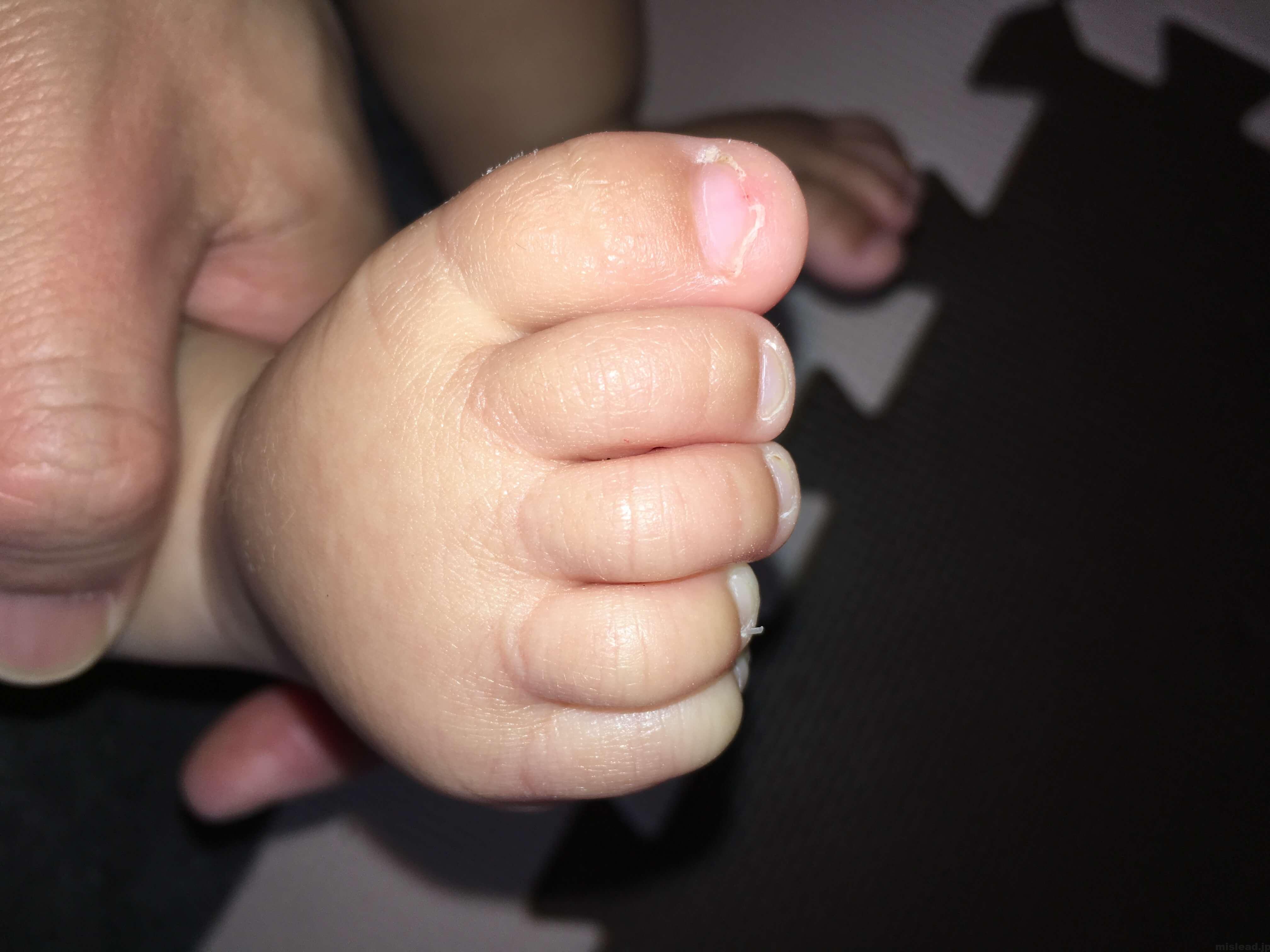 異汗性湿疹 足の甲 病院後四週間目