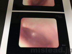 中耳炎の診察2回目左耳も鼓膜