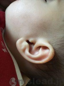 鼓膜切開後の耳垂れ1