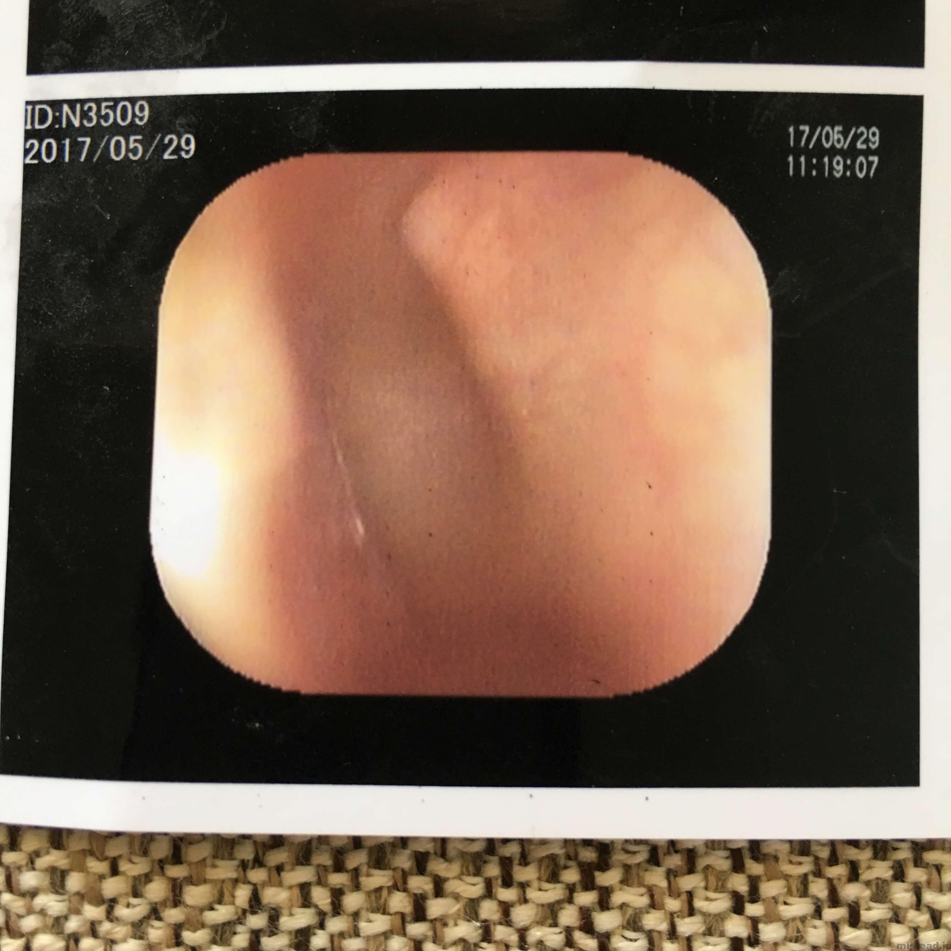 鼓膜切開後の中耳炎の診察 左耳
